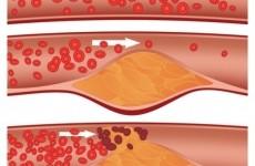 colesterol artere