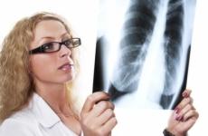 radiografie pulmonara