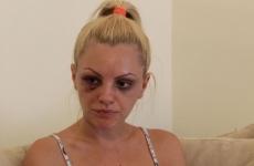 Alexandra Stan bătută