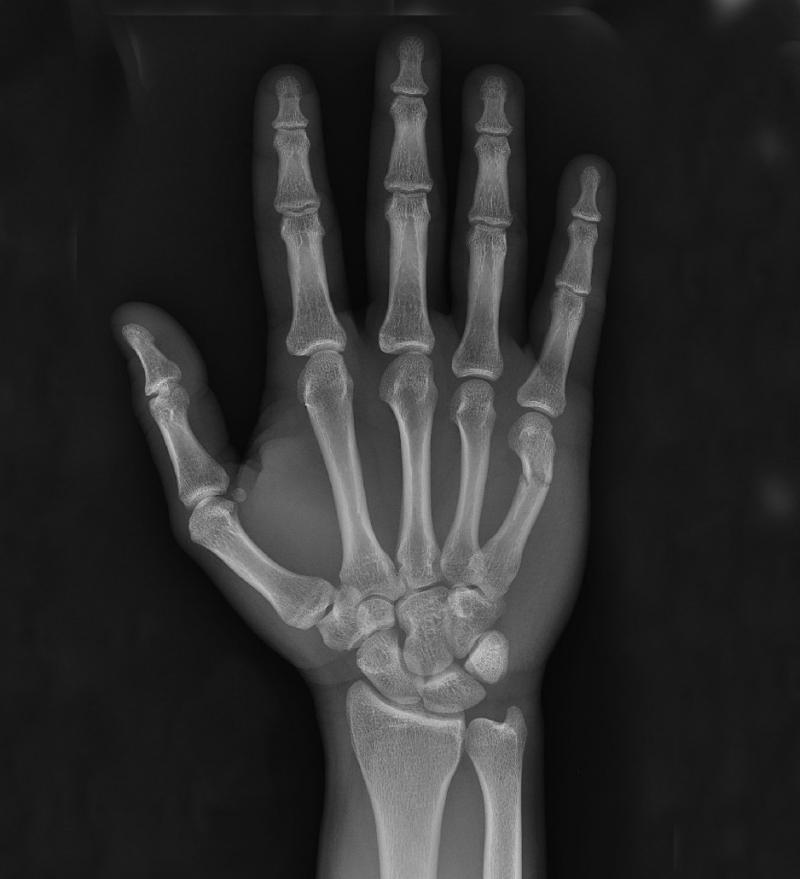 Radiografie de mana osteoartrita