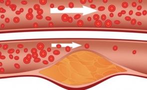 colesterol, vase, sânge