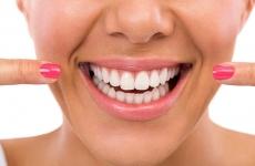 dinți, implant dentar