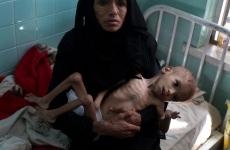 Malnutritie yemen