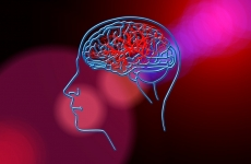 AVC accident vascular cerebral