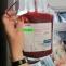 plasma umana sange recoltare