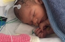Oscar Parodi bebelus terapie canabis
