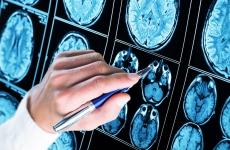 tromboza boala creier medicina