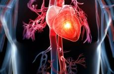 inima miocardita