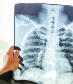 radiografie plaman